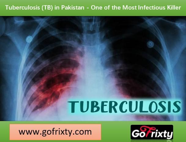 Tuberculosis TB in Pakistan an infectious killer